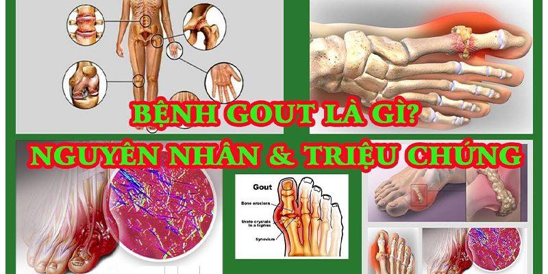 Nguyên nhân gây bệnh gout