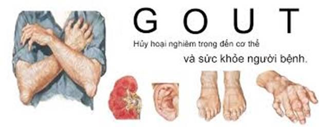 biến chứng thường gặp ở bệnh gout