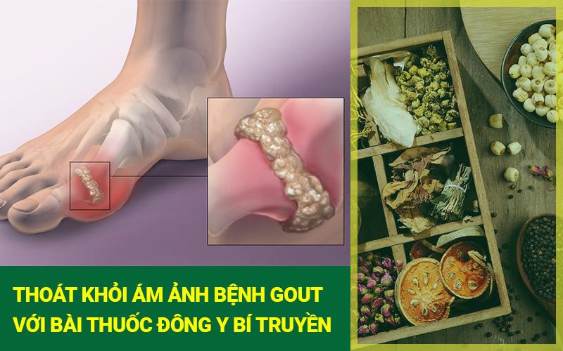 Bài thuốc đông y để điều trị bệnh gout hiệu quả