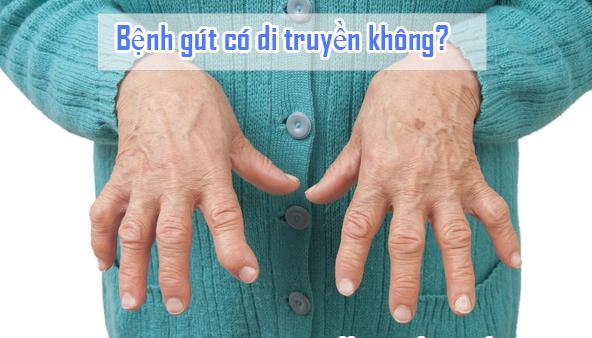 Bệnh gut có di truyền không?