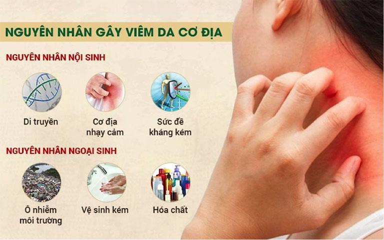 Nguyên nhân gây viêm da cơ địa