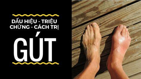 Những triệu chứng hay gặp của bệnh gout là gì?
