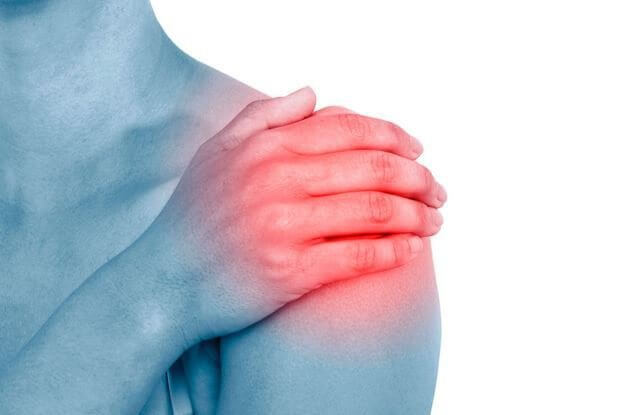 Các thể viêm quanh khớp vai thường gặp