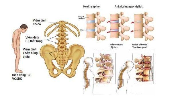 Những triệu chứng của viêm cột sống dính khớp