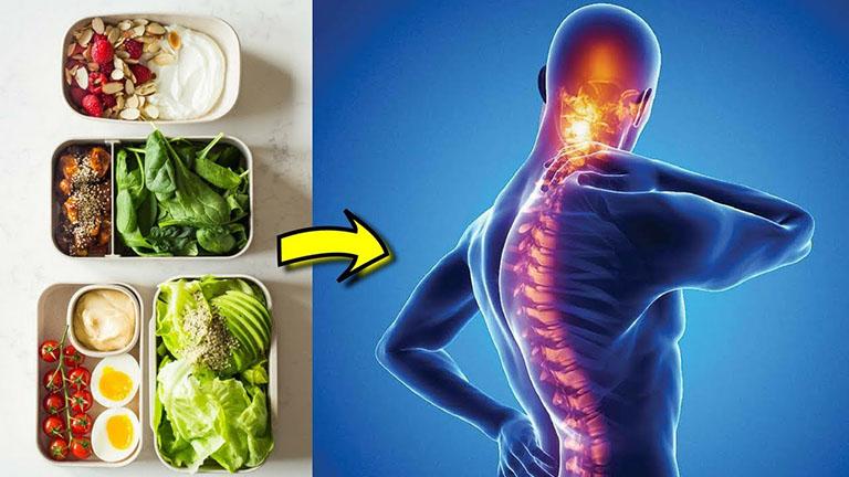 Bệnh viêm cột sống dính khớp và cách điều trị