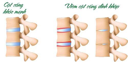 Viêm cột sống dính khớp là gì?