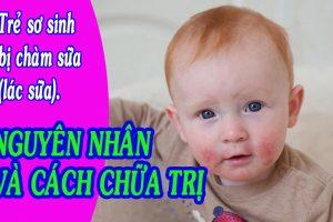 Chàm sữa ở trẻ em: triệu chứng, nguyên nhân & cách chữa trị