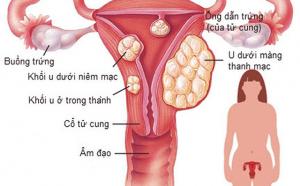 U xơ tử cung và những điều cần biết