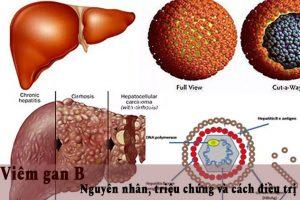 Bệnh viêm gan B: con đường lây nhiễm, cách phòng tránh và điều trị