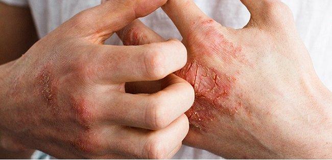 Biểu hiệnh bệnh và vảy nến