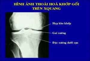 X- Quang thoái hóa khớp (hình ảnh)