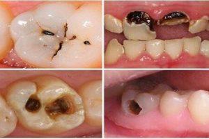 Nguyên nhân và triệu chứng của bệnh sâu răng không nên bỏ lỡ