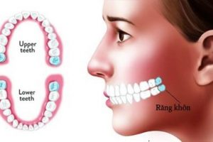 Răng khôn: Dấu hiệu và cách xử lý khi răng khôn mọc lệch