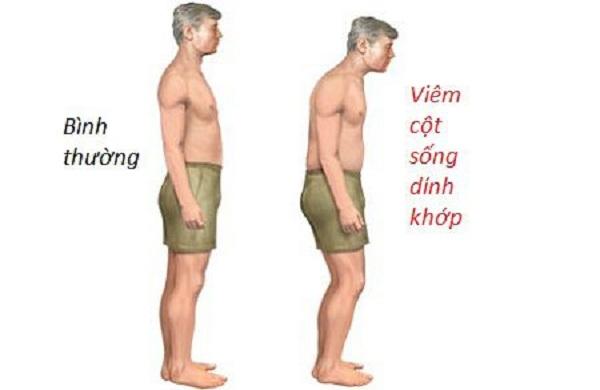 Viêm cột sống dính khớp triệu chứng và cách điều trị