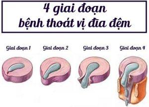 Các giai đoạn của bệnh