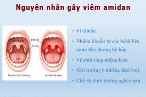 Những nguyên nhân gây viêm amidan
