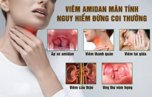 Triệu chứng viêm amidan (biểu hiện bệnh)