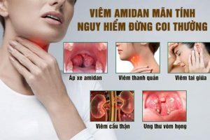 Triệu chứng, cách điều trị và phòng tránh tái phát bệnh viêm amidan