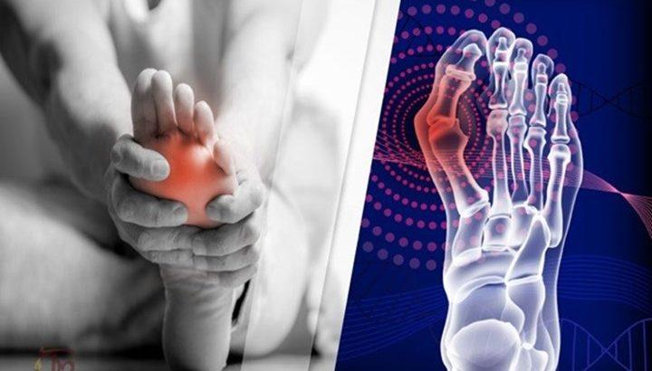 X quang bệnh gout