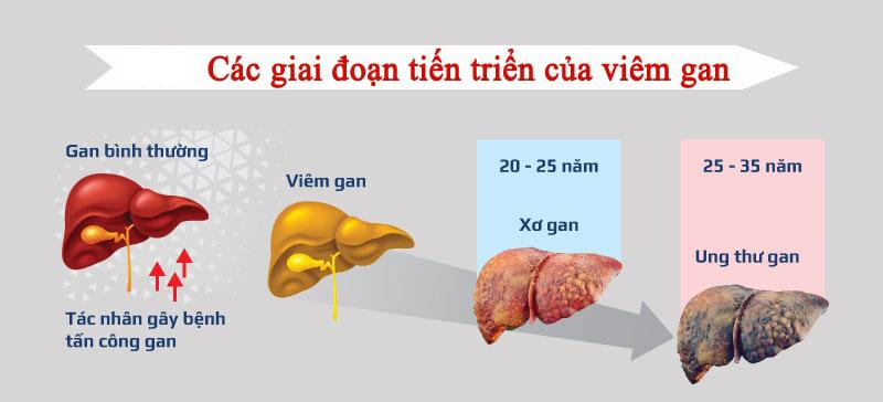Các giai đoạn phát triển của viêm gan