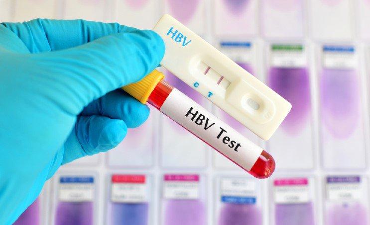 Ảnh minh họa - xét nghiệm bằng lấy máu bằng HBV Test