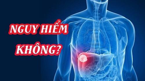 Viêm gan có nguy hiểm hay không?