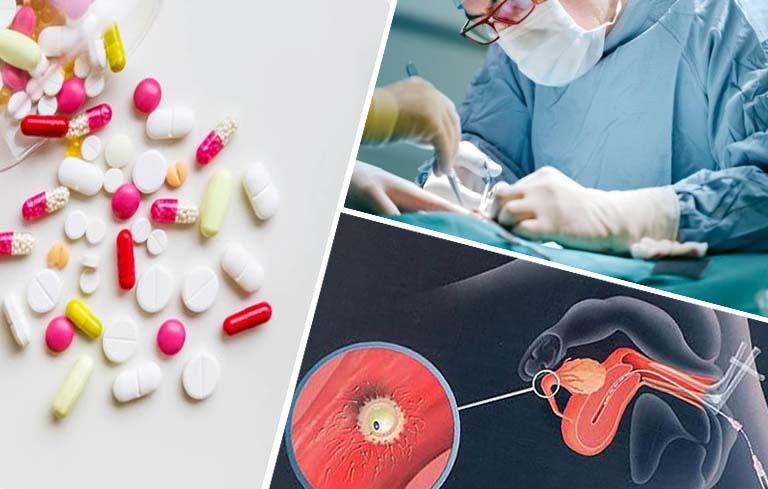 Điều trị buồng trứng đa nang bằng tây y