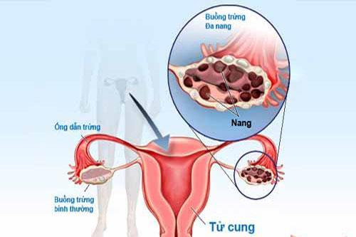 Hình ảnh về bệnh buồng trứng đa nang