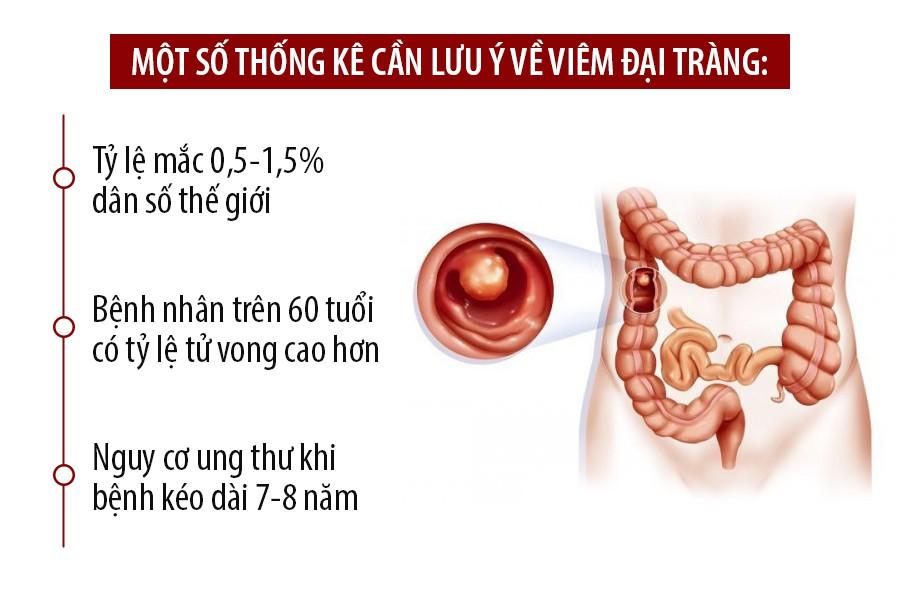 Tỷ lệ mắc bệnh viêm đại tràng ở nước ta