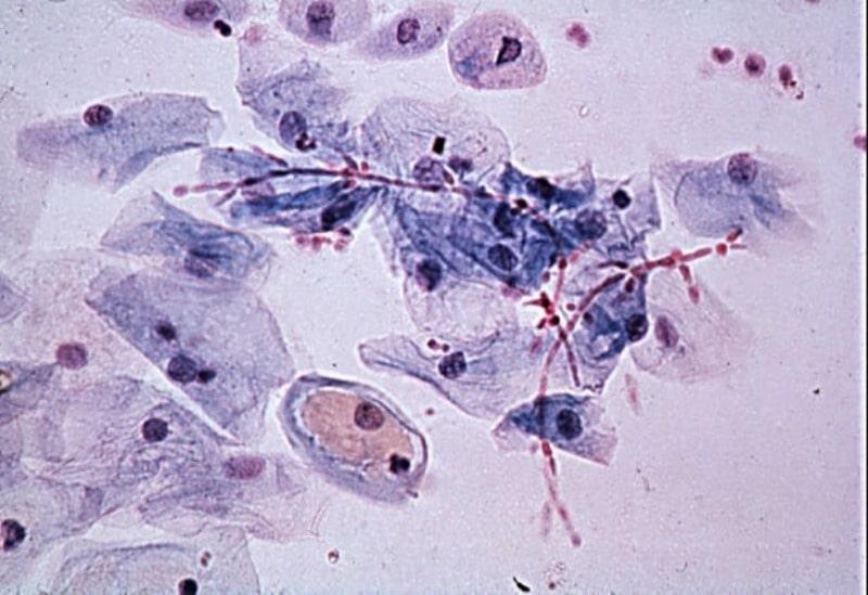 Viêm âm đạo và cổ tử cung do tạp khuẩn: