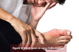 Bệnh gút có nguy hiểm không? Bệnh gout nên ăn gì và kiêng gì?