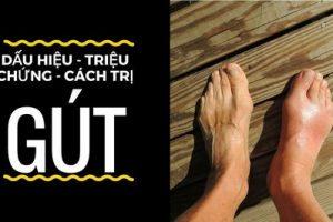 Bệnh gout là gì? nguyên nhân, triệu chứng và cách điều trị gout