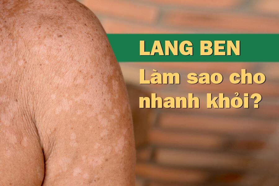 Bệnh lang ben là gì?