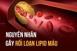 Rối loạn chuyển hóa lipid là gì? nguyên nhân, điều trị & phòng ngừa