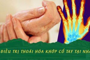 Cẩm nang từ A-Z các cách điều trị thoái hóa khớp cổ tay