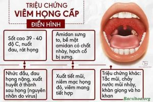 Phân biệt viêm họng cấp tính và mãn tính – Phương pháp điều trị