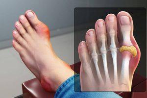 Đau khớp ngón chân – dấu hiệu không nên chủ quan