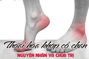 Bệnh thoái hóa khớp cổ chân uống thuốc gì, cách nhận biết & điều trị