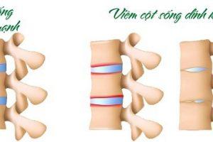 Viêm cột sống dính khớp là gì và liệu pháp điều trị hiện nay