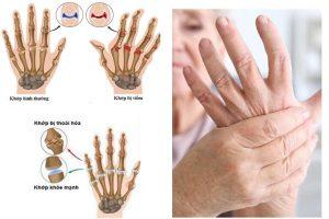 Biến chứng viêm khớp dạng thấp gây biến dạng khớp, làm hạn chế khả năng vận động của người bệnh