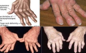 Những dấu hiệu sớm của viêm khớp dạng thấp
