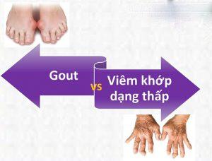 Cách phân biệt bệnh gout và bệnh viêm khớp dạng thấp