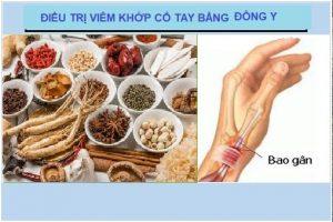 Phương pháp chữa đau cổ tay bằng thuốc Đông y