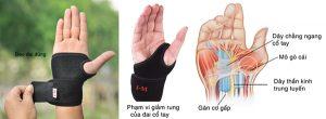 Điều trị đau khớp cổ tay bằng vật lý trị liệu