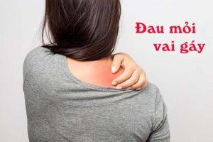 Phân loại các triệu chứng đau vai gáy